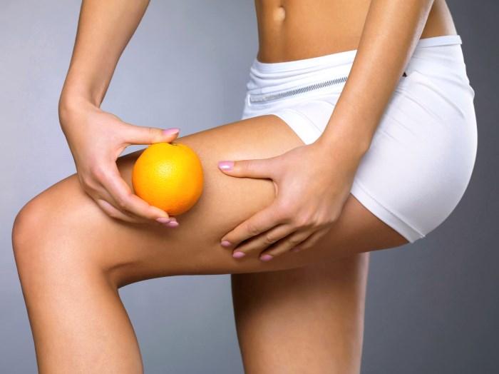 Как убрать целлюлит на ногах: комплексный подход