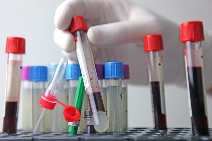 Инкубационный период сифилиса: через какое время проявляется болезнь?