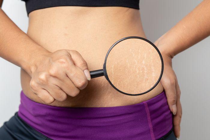 Как подтянуть кожу после похудения в 50 лет
